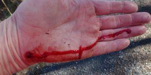 Blod fra sår i hånd